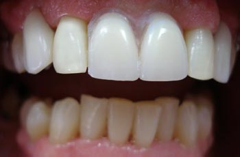 Orlando Dental Cosmetic And Teeth Whitening Service