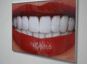Teeth Whitening Poster